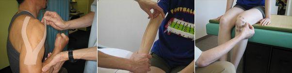 スポーツ障害の治療:テーピング.jpg