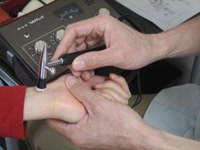 皮膚病の治療:自律神経測定.JPG