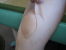 膝痛の治療:キネシオテープ.JPG