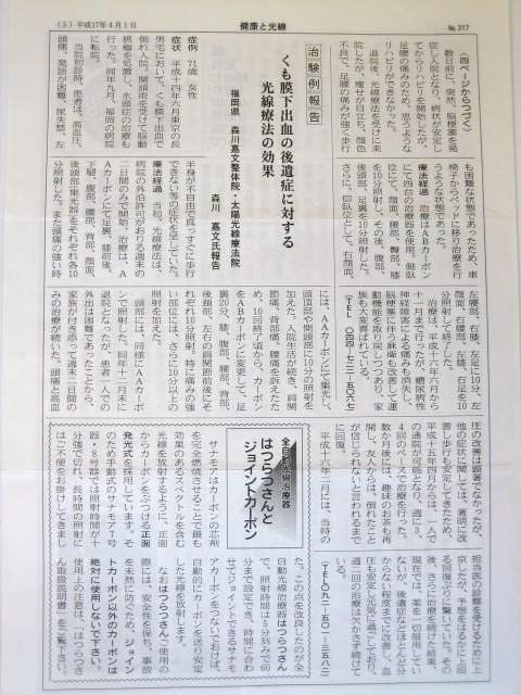 http://www.morikawa-st.jp/pages/%E3%81%8F%E3%82%82%E8%86%9C%E4%B8%8B%E5%87%BA%E8%A1%80%E6%B2%BB%E9%A8%93.JPG