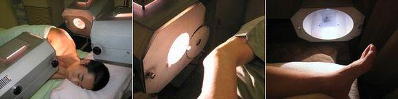 スポーツ障害の治療:光線療法.jpg